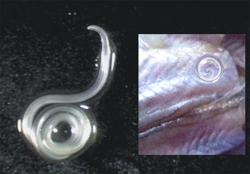 определение паразитов организме человека
